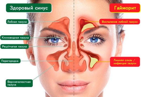 Здоровый синус и патология