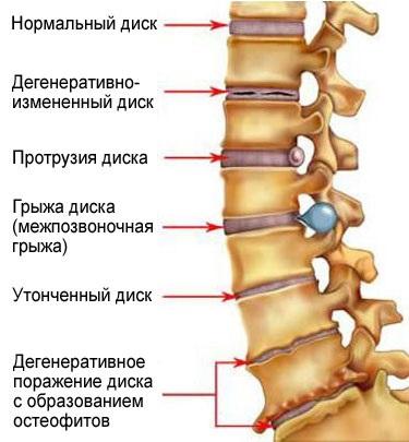 Стадии остеохондроза пояснично-крестцового отдела позвоночника