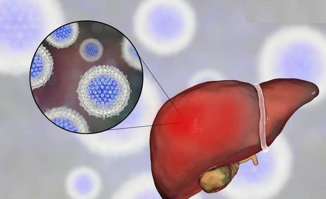 Причины возникновения хронического гепатита