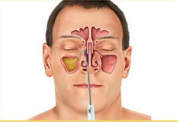 схема носовых пазух