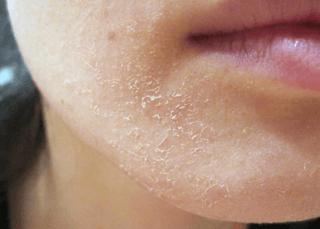 Выраженная сухость кожи