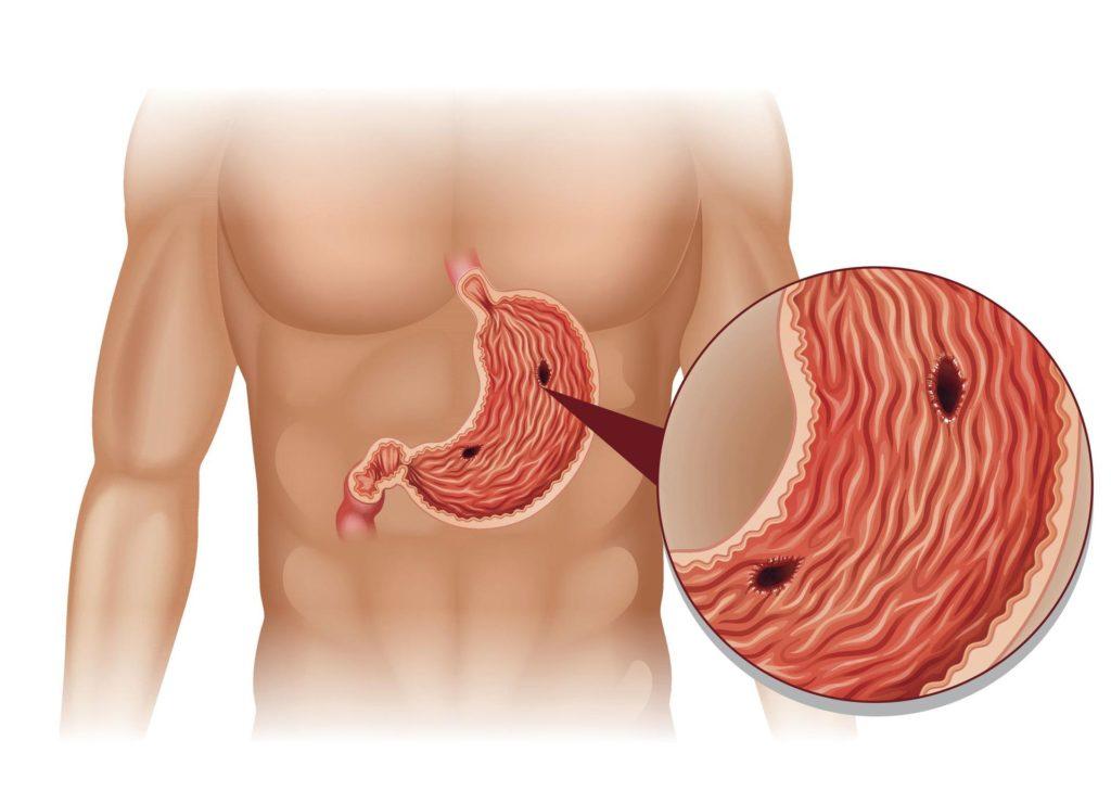Признаки перфорации желудка