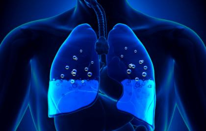 Токсический отек легких