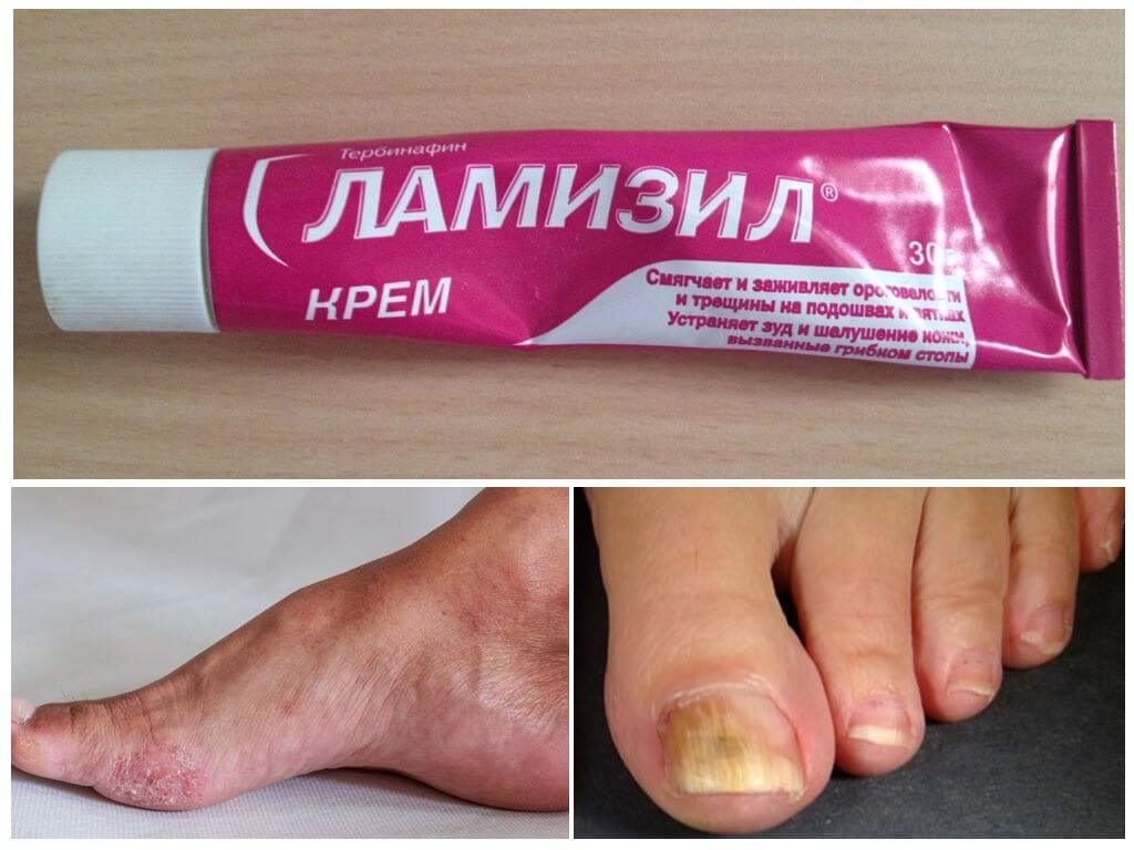 Лекарство от грибка ногтей Ламизин