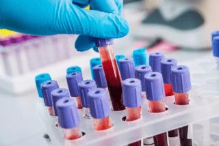 Серологические методики исследования крови
