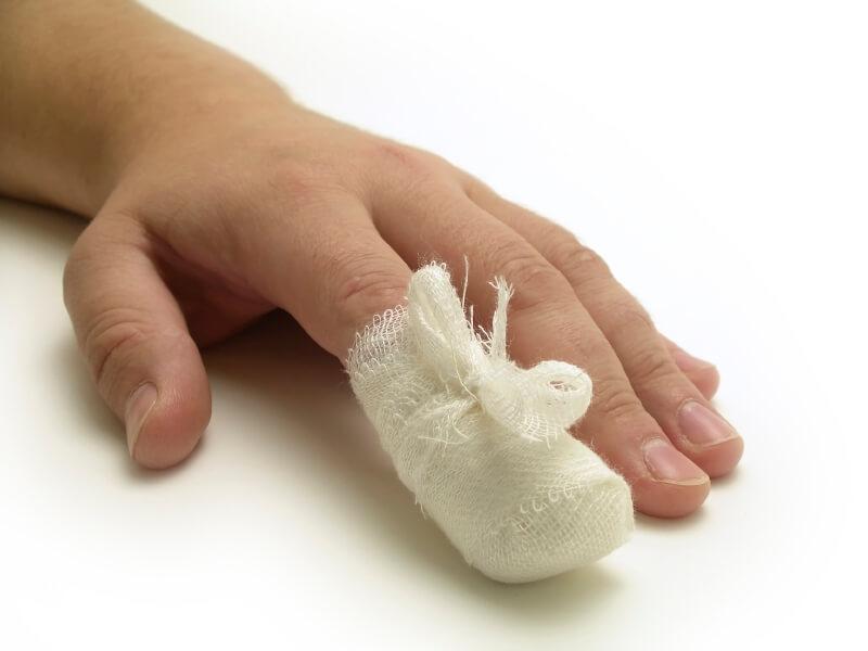 Что делать при травме ногтя
