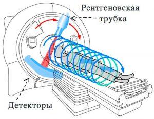 Компьютерная томография принцип