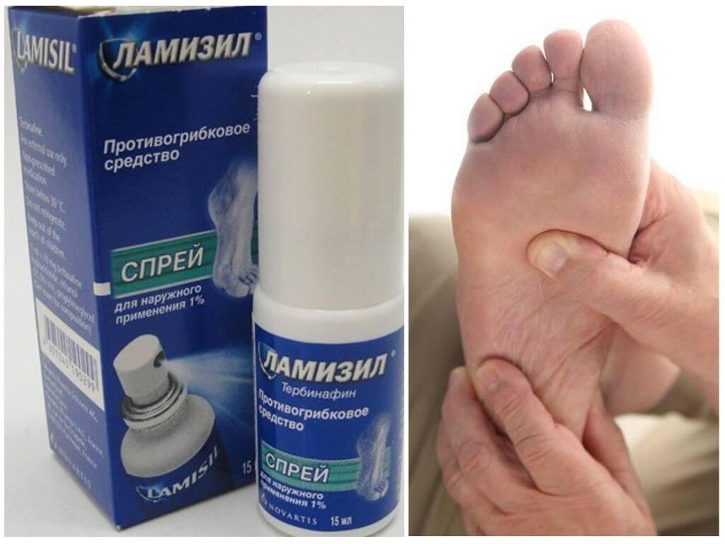 Особые указания по применению препарата «Ламизил»