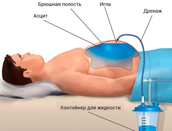 Лечение асцита при циррозе