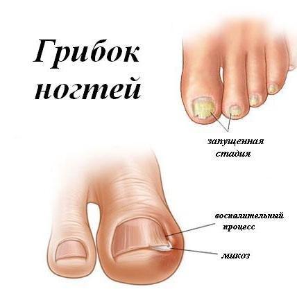 Что такое Онихомикоз