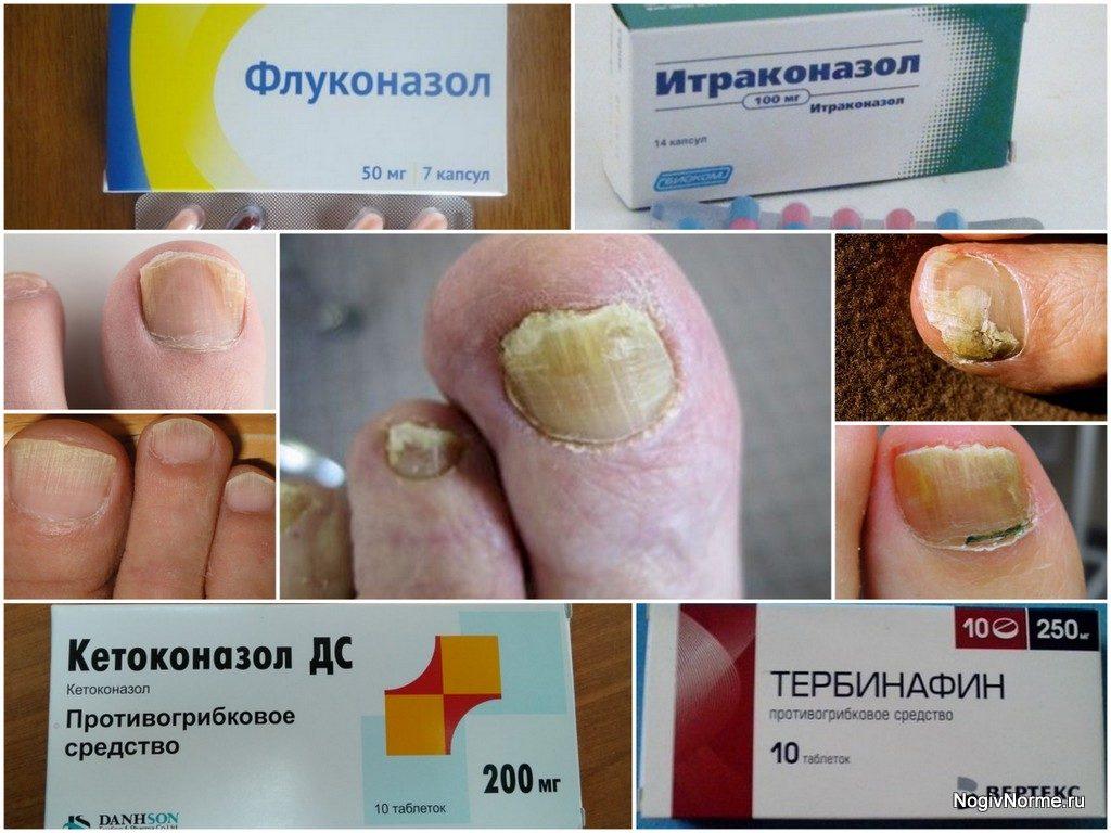 Лечение грибка таблетками