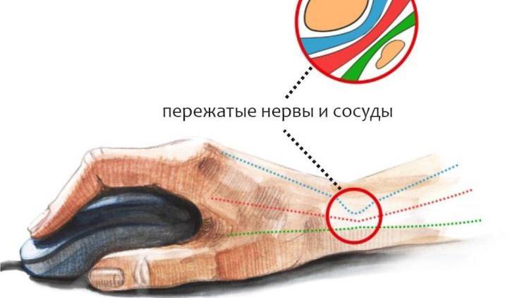 Болит в кисти при туннельном синдроме