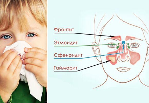 рисунок виды болезней носа