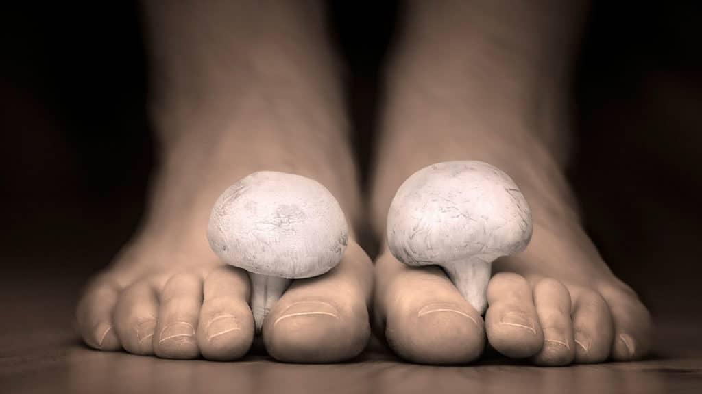 Грибок на ступнях