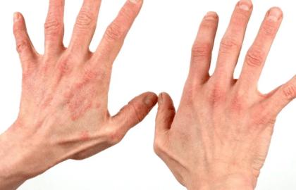 Покраснения на руках