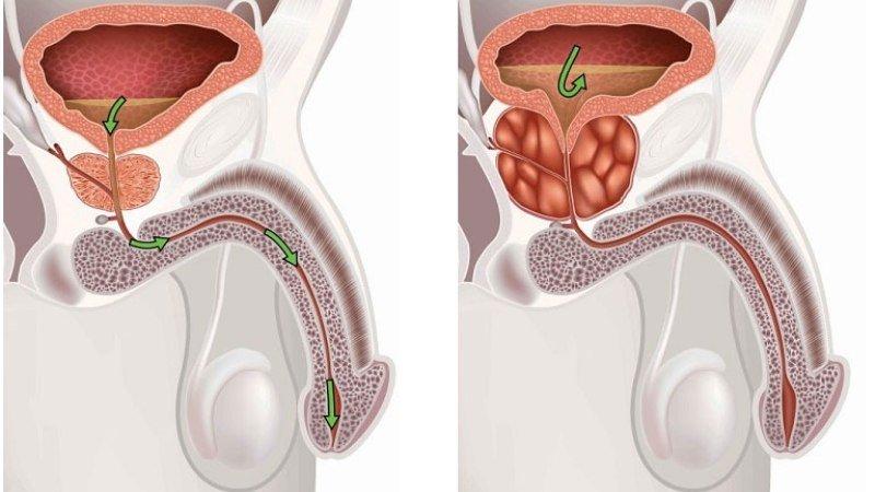 Воспаление у мужа простатит биологически активные добавки при простатитах
