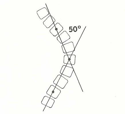 Определение степени сколиоза по методу Фергюсона