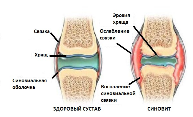 Синовит коленного сустава фото