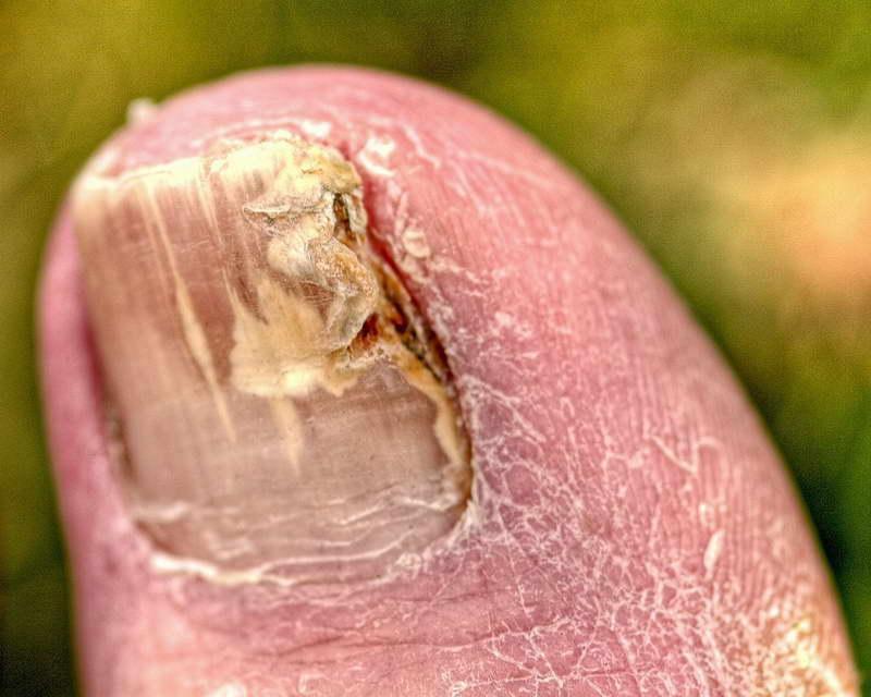 Почему появляется грибок