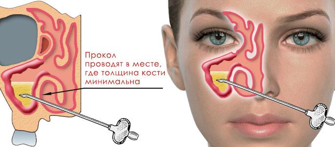 лечение гайморита хирургическим путем