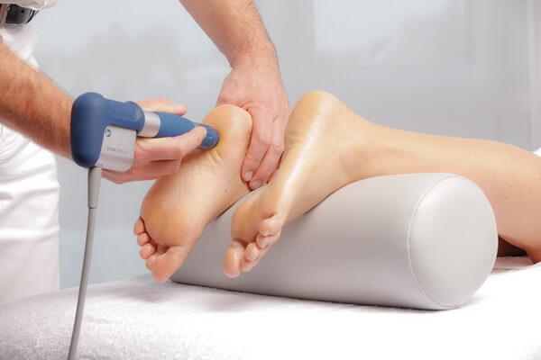 Лечение пяточных шпор ударно-волновой терапией