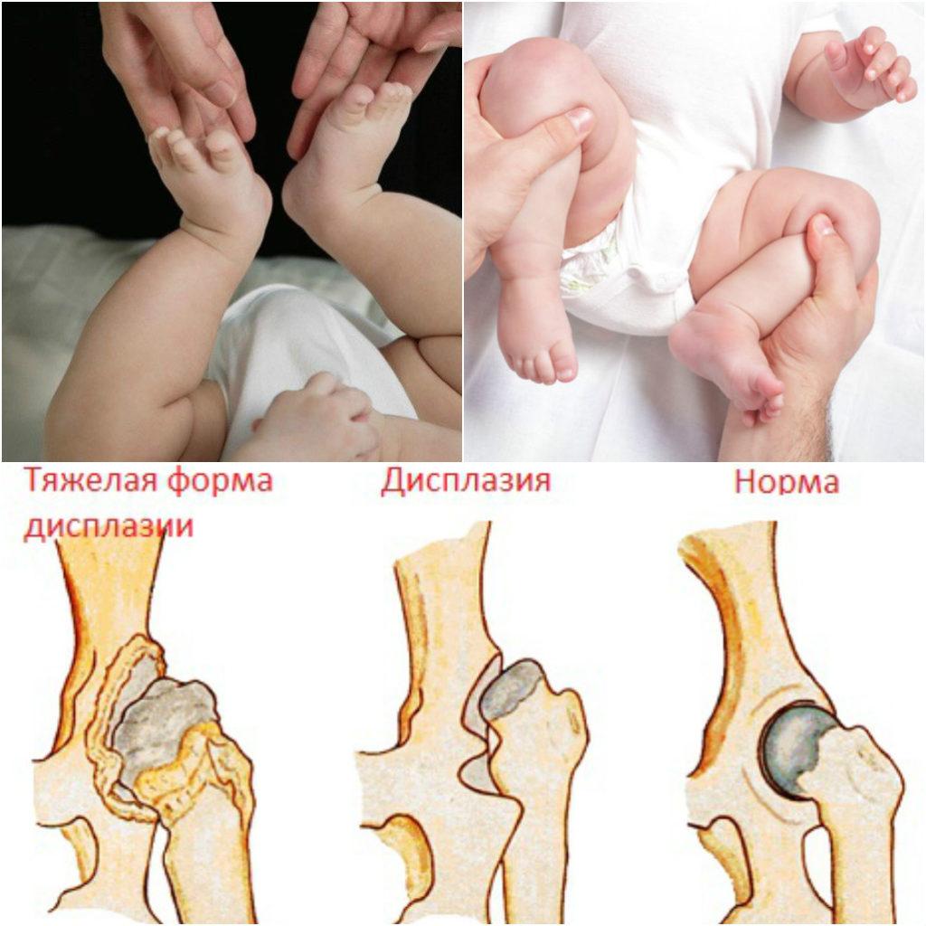 Формы дисплазии тазобедренного сустава