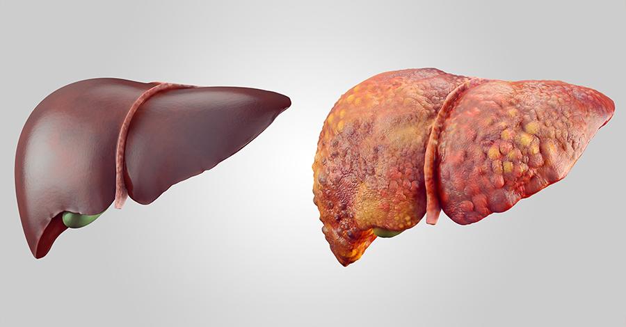 гепатит печени в картинках проводит настройку