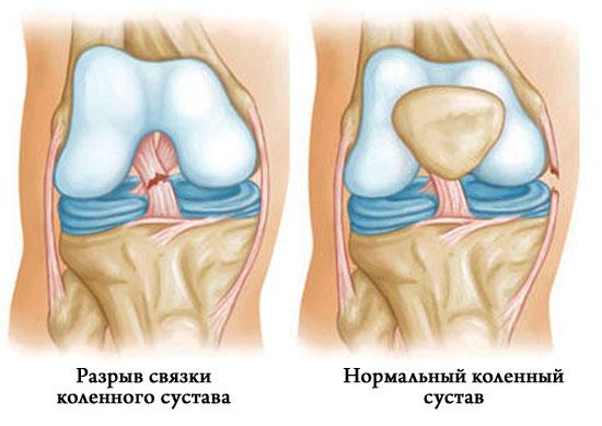 Разрыв связок коленного сустава