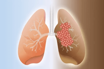 Развитие отека легких