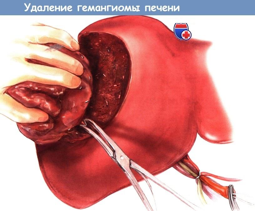 Операция при гемангиоме печени