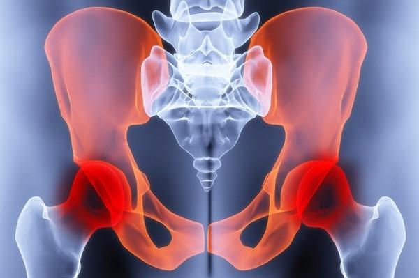 Остеоартрит тазобедренных суставов симптомы