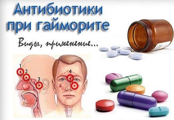 разные антибиотики при гайморите