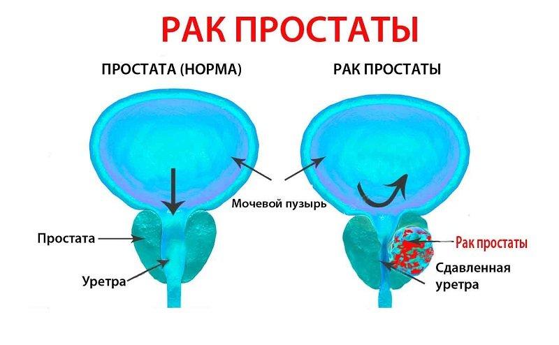 Рак простаты требует скорой терапии, поскольку быстро прогрессирует.