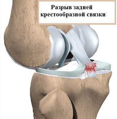 Разрыв задней крестообразной связки коленного сустава