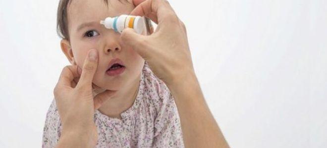 Причины и лечение насморка с конъюнктивитом у ребенка
