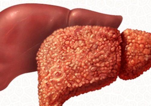 Здоровая печень и пораженная циррозом