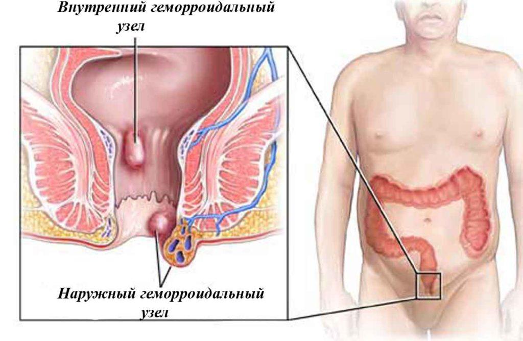 Геморрой может появиться в результате неправильного питания