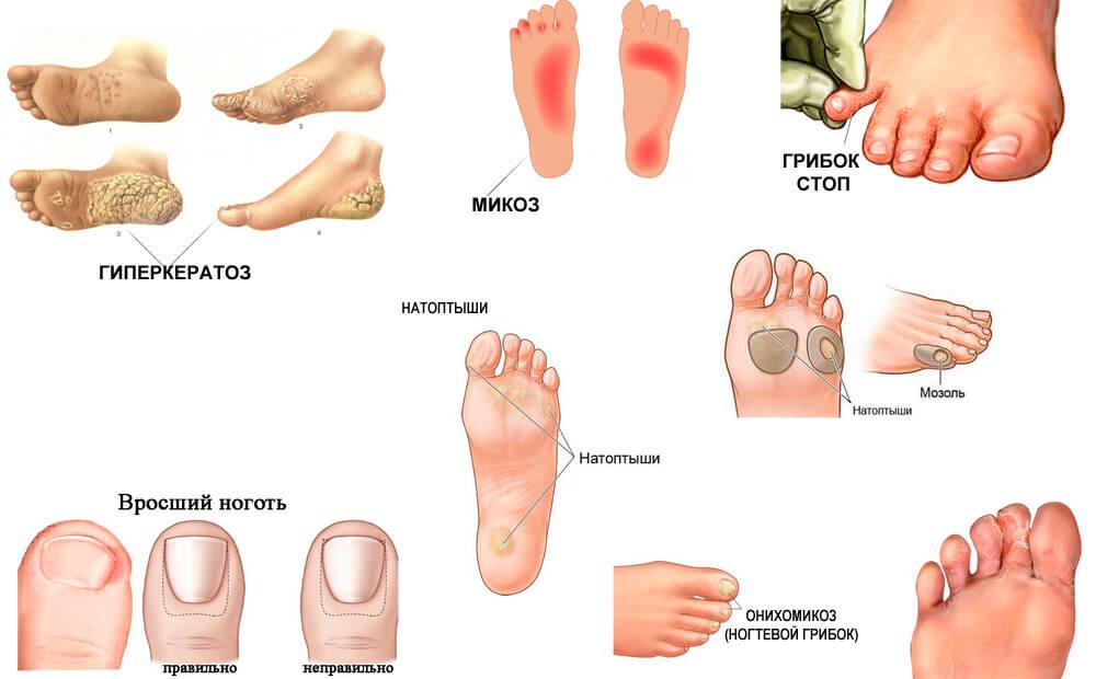 Микоз пальцев ног